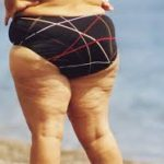 7 Things About Cellulite That You Don't Know