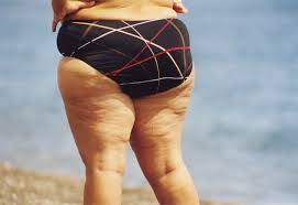 about cellulite