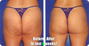 truth about cellulite program