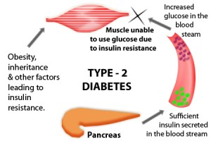 frequently asked questions about type 2 diabetes reviews of  : diabetes diagram - findchart.co