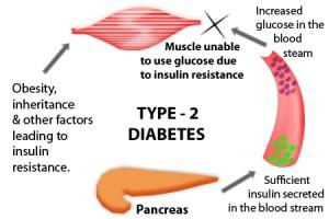 Type-2-Diabetes-Diagram-300x200