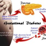 Simple Tricks to Beat Gestational Diabetes Hands Down